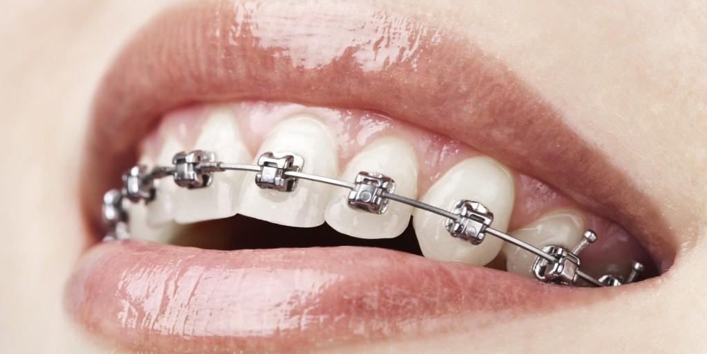 orthodontic malpractice miller ogorchock law firm